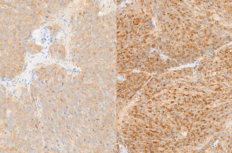 Abundance of iron drives cell death and could inform novel treatments for neuroblastoma